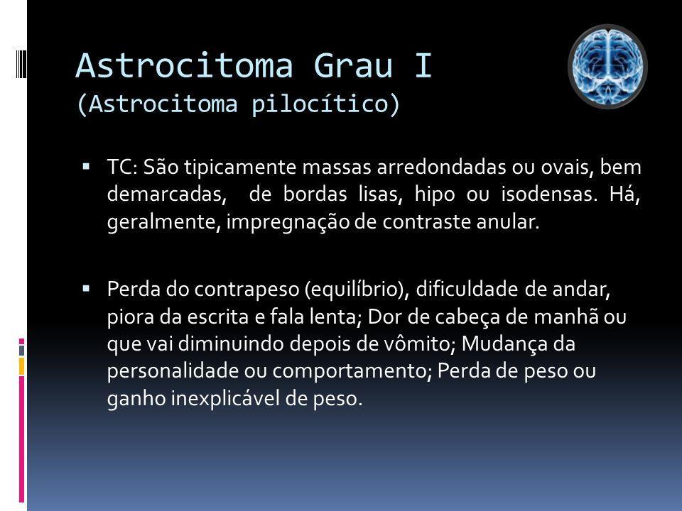Astrocitoma Grau I (Astrocitoma pilocítico)