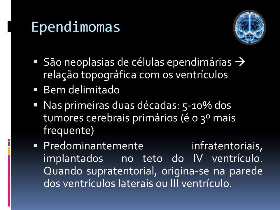 Ependimomas São neoplasias de células ependimárias  relação topográfica com os ventrículos. Bem delimitado.