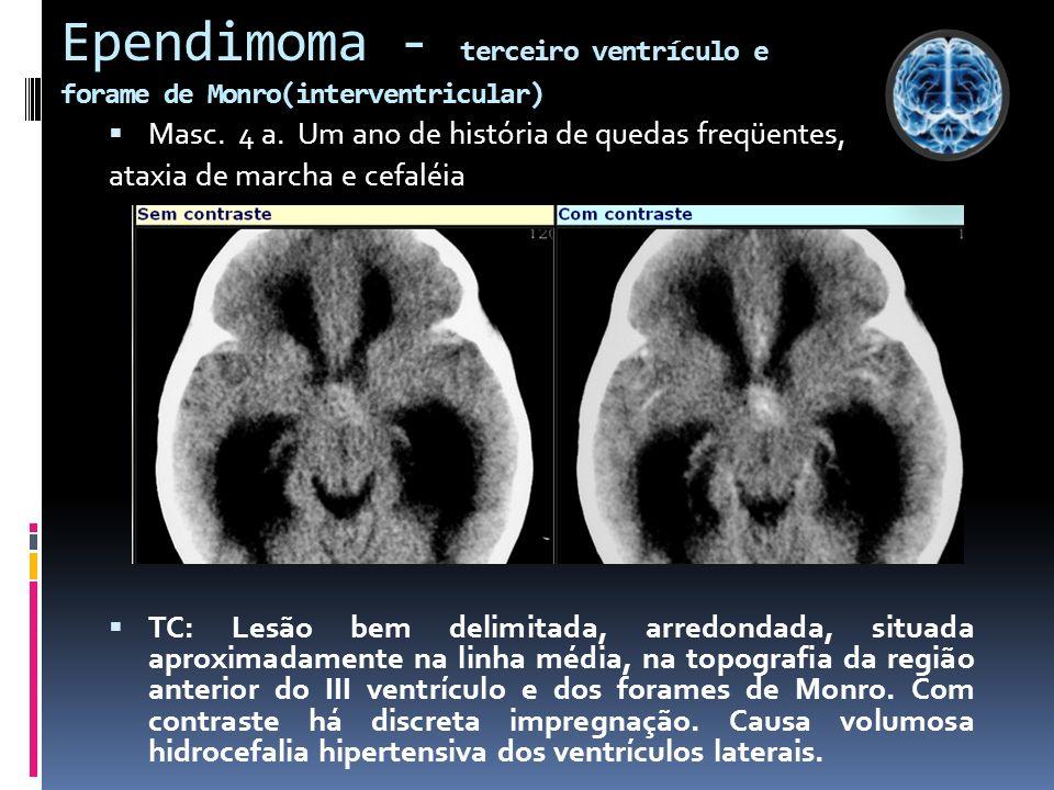 Ependimoma - terceiro ventrículo e forame de Monro(interventricular)