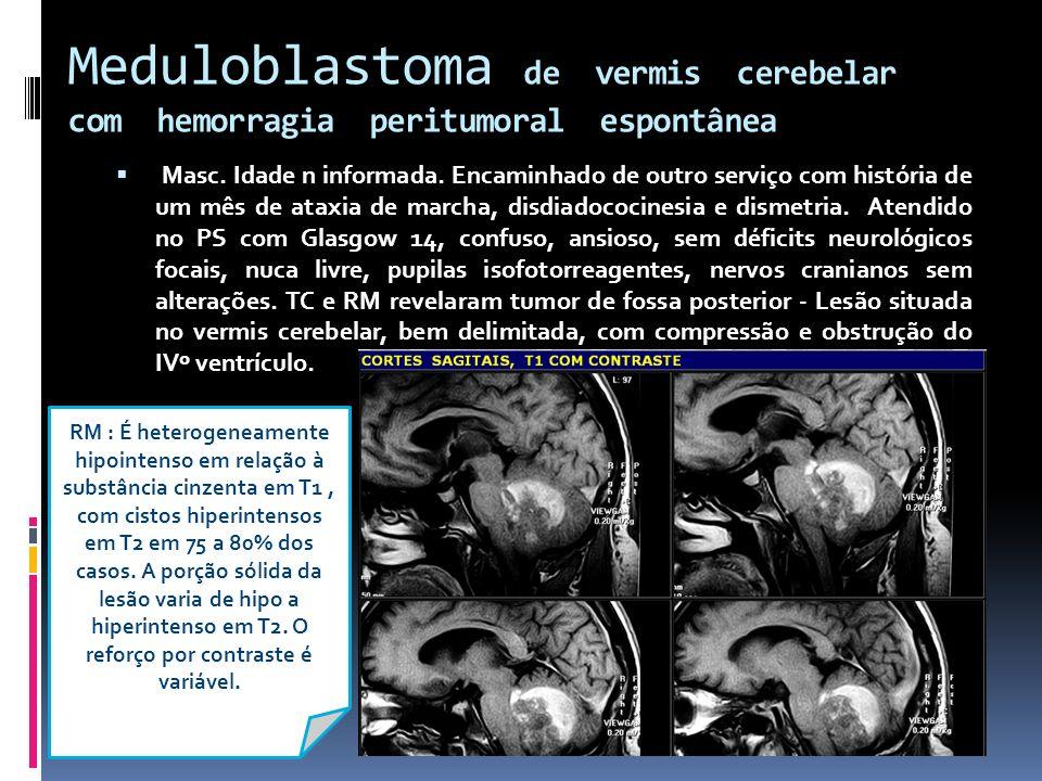 Meduloblastoma de vermis cerebelar com hemorragia peritumoral espontânea