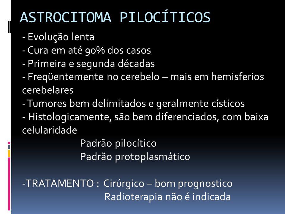 ASTROCITOMA PILOCÍTICOS