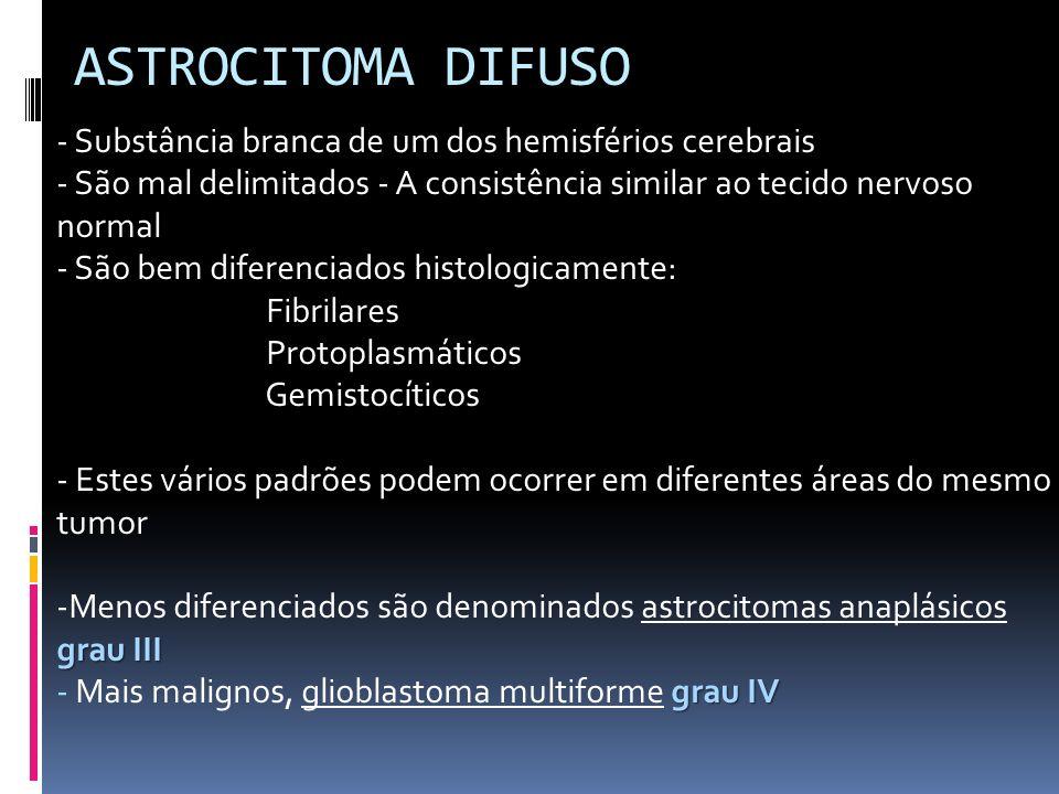 ASTROCITOMA DIFUSO - Substância branca de um dos hemisférios cerebrais