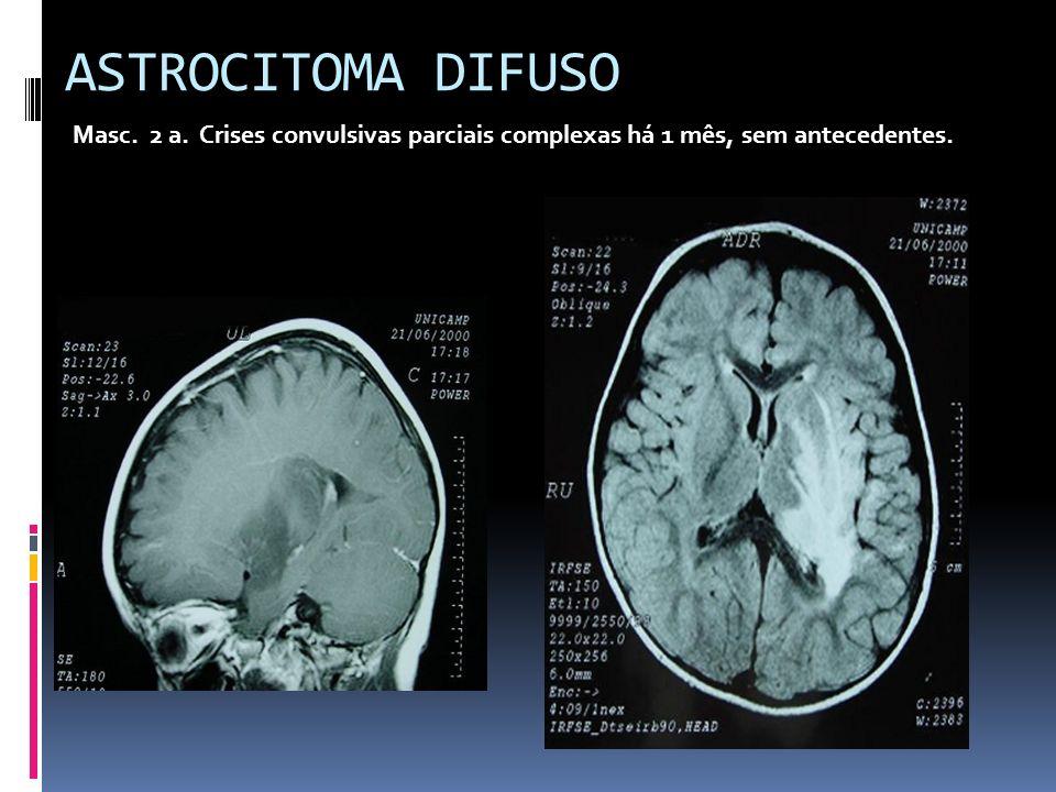 ASTROCITOMA DIFUSO Masc. 2 a. Crises convulsivas parciais complexas há 1 mês, sem antecedentes.