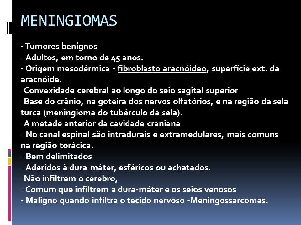 MENINGIOMAS - Tumores benignos - Adultos, em torno de 45 anos.