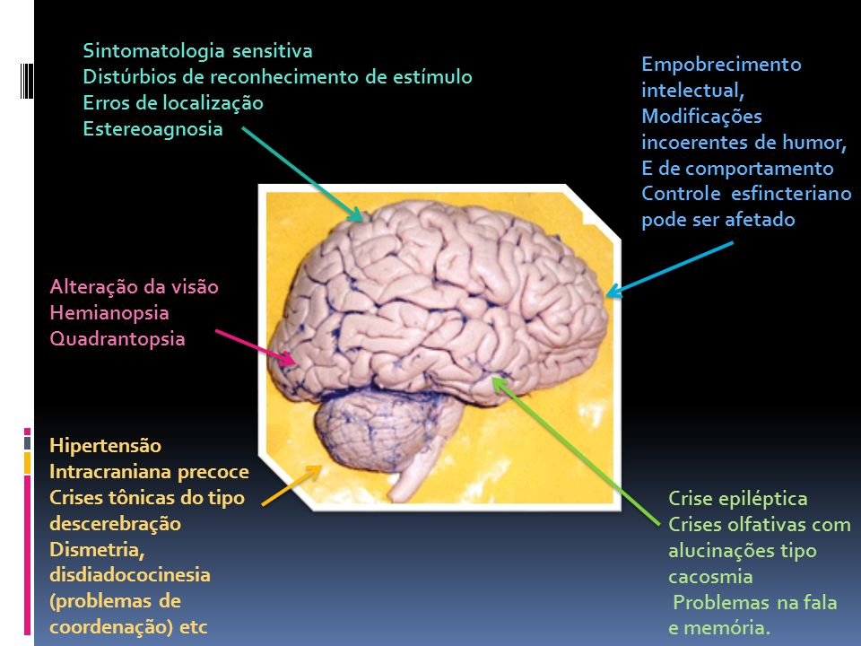 Sintomatologia sensitiva