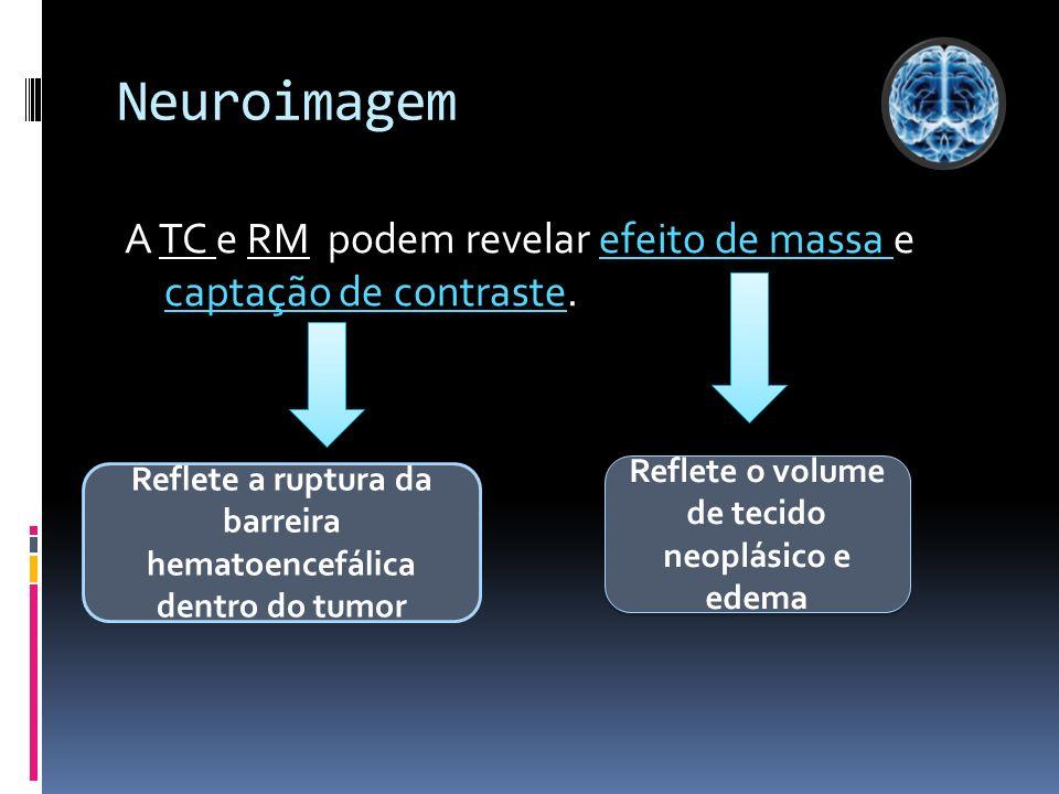 Neuroimagem A TC e RM podem revelar efeito de massa e captação de contraste. Reflete o volume de tecido neoplásico e edema.