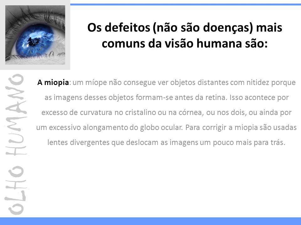 Os defeitos (não são doenças) mais comuns da visão humana são:
