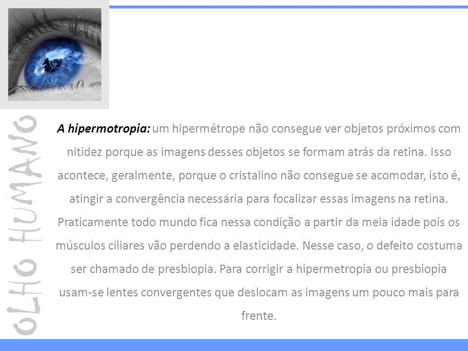 A hipermotropia: um hipermétrope não consegue ver objetos próximos com nitidez porque as imagens desses objetos se formam atrás da retina.