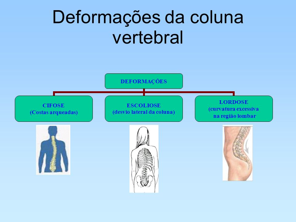 Deformações da coluna vertebral