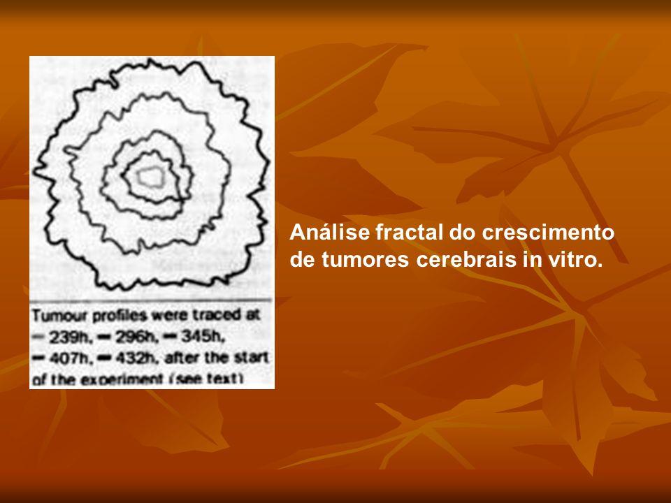 Análise fractal do crescimento de tumores cerebrais in vitro.