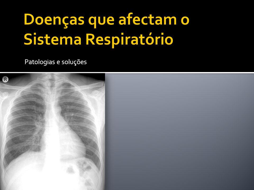 Doenças que afectam o Sistema Respiratório