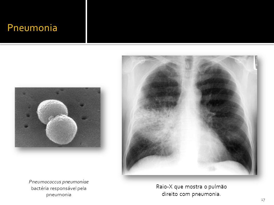Pneumonia Raio-X que mostra o pulmão direito com pneumonia.