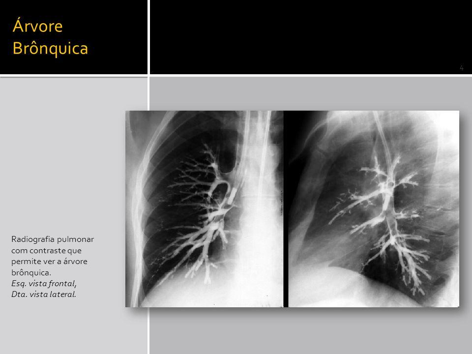 Árvore Brônquica Radiografia pulmonar com contraste que permite ver a árvore brônquica. Esq. vista frontal,