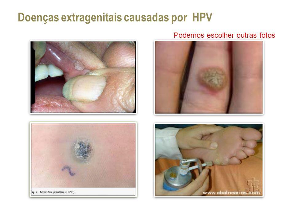 Doenças extragenitais causadas por HPV