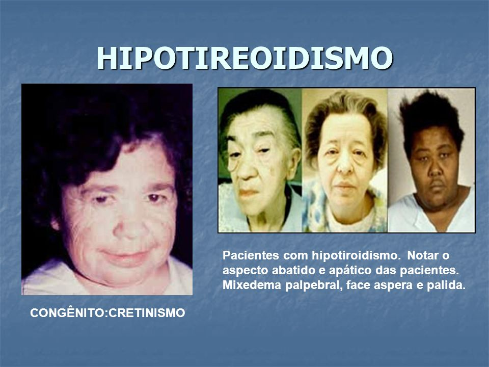 HIPOTIREOIDISMO Pacientes com hipotiroidismo. Notar o aspecto abatido e apático das pacientes. Mixedema palpebral, face aspera e palida.