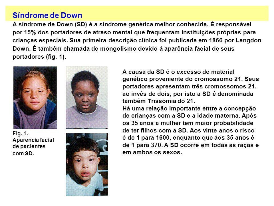 Síndrome de Down A síndrome de Down (SD) é a síndrome genética melhor conhecida. É responsável.