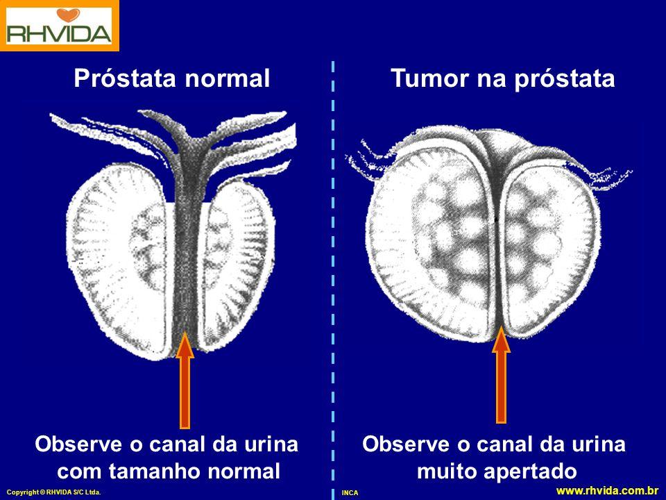 Observe o canal da urina Observe o canal da urina