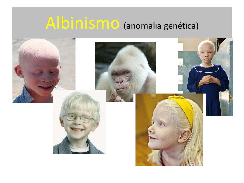 Albinismo (anomalia genética)