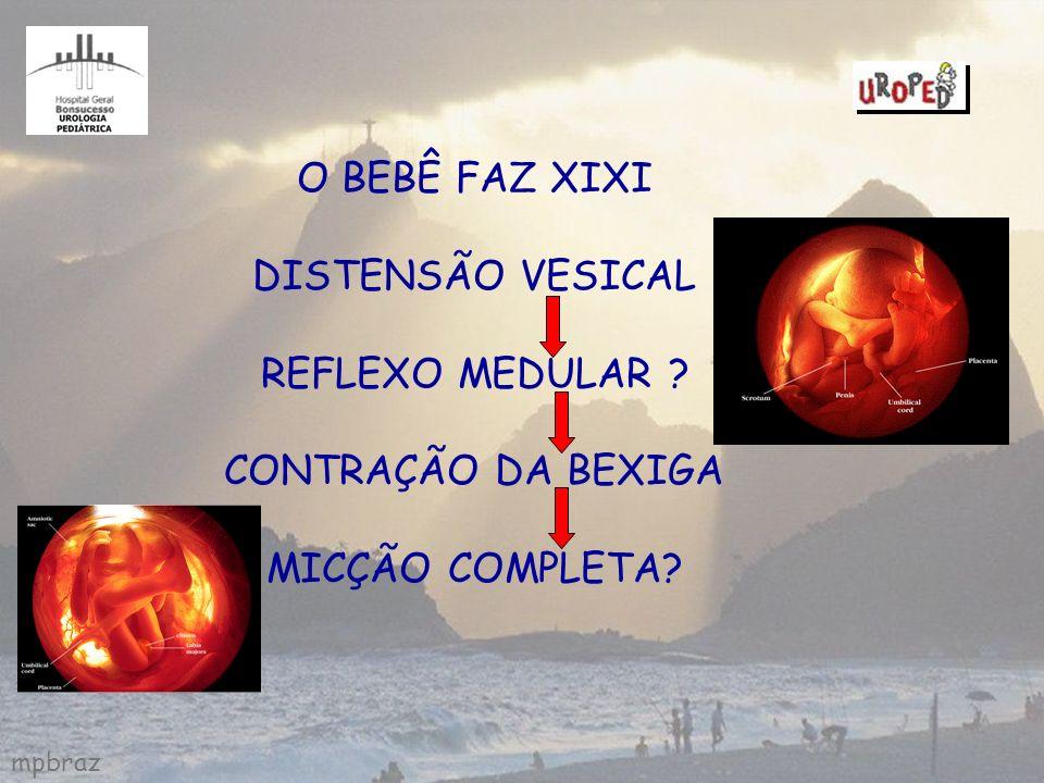 O BEBÊ FAZ XIXI DISTENSÃO VESICAL REFLEXO MEDULAR