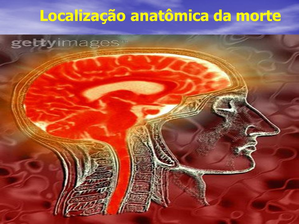 Localização anatômica da morte