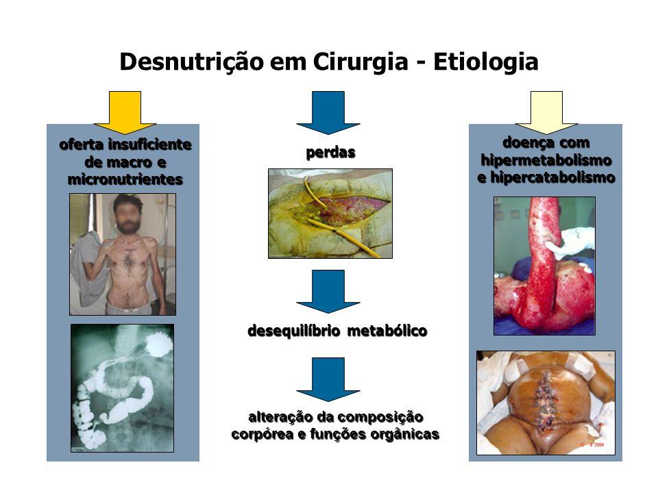 Desnutrição em Cirurgia - Etiologia
