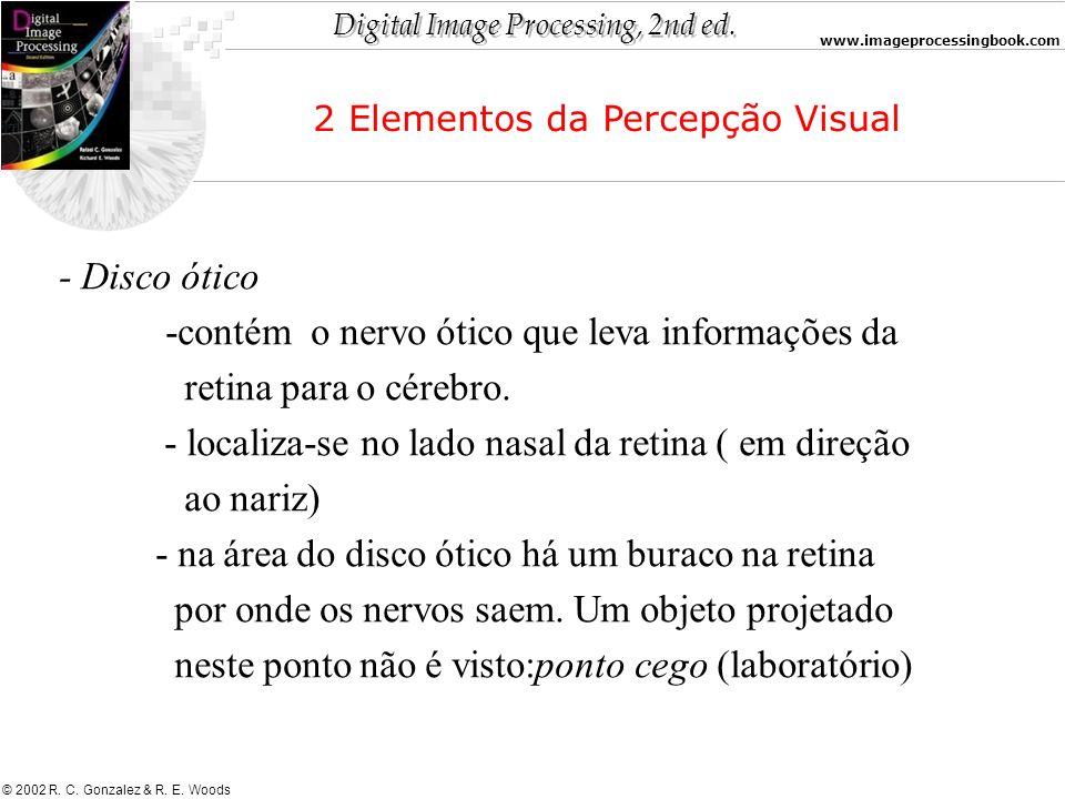-contém o nervo ótico que leva informações da retina para o cérebro.