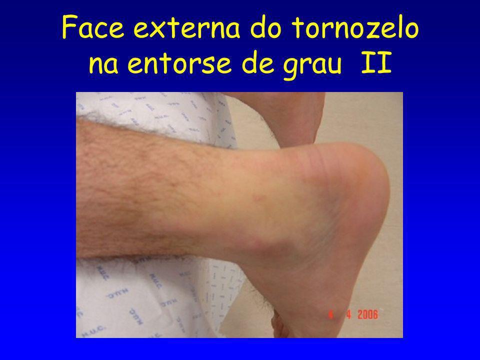 Face externa do tornozelo na entorse de grau II