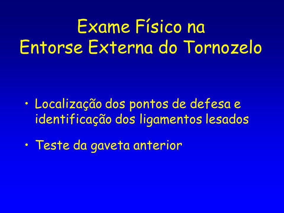 Exame Físico na Entorse Externa do Tornozelo