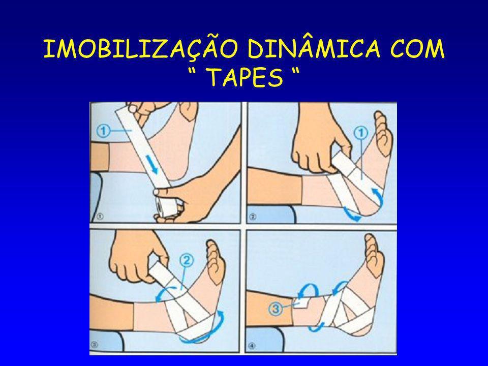 IMOBILIZAÇÃO DINÂMICA COM TAPES