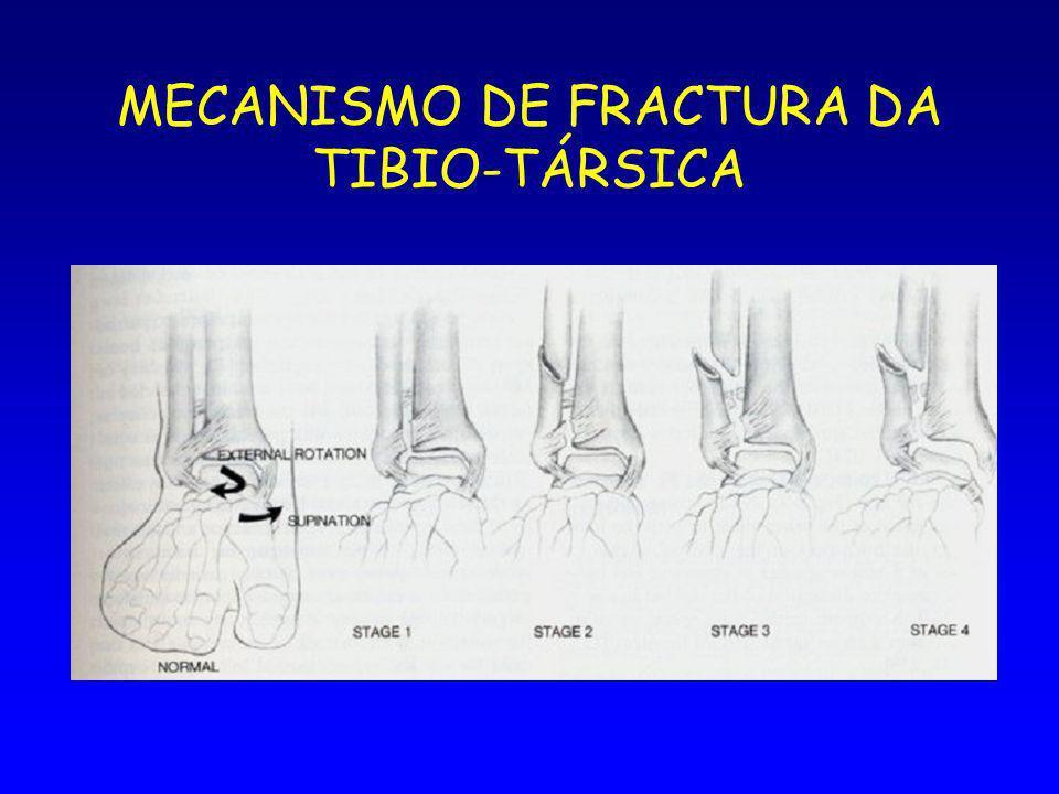 MECANISMO DE FRACTURA DA TIBIO-TÁRSICA