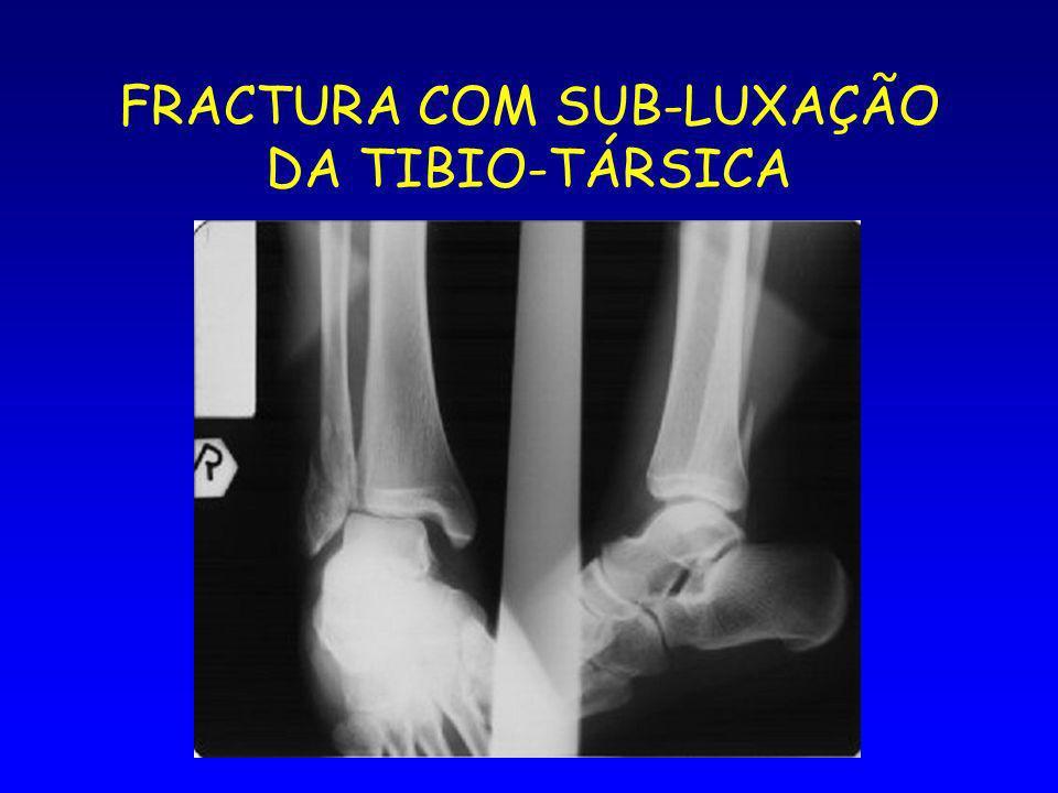 FRACTURA COM SUB-LUXAÇÃO DA TIBIO-TÁRSICA