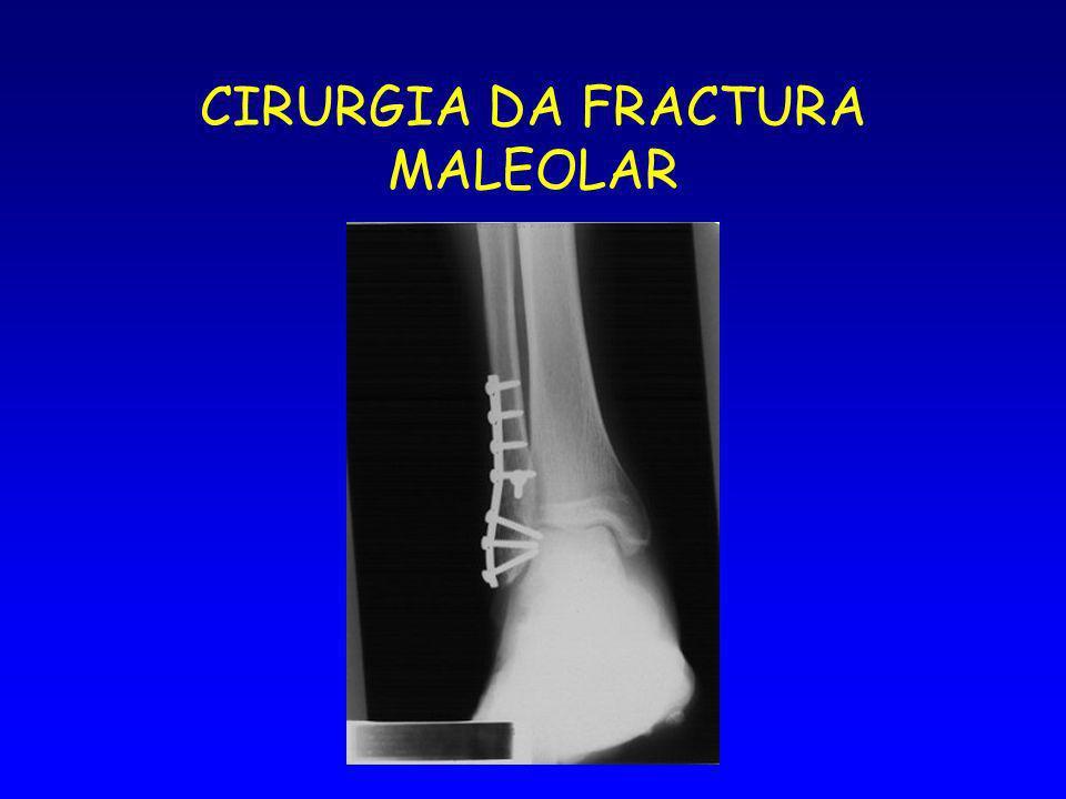 CIRURGIA DA FRACTURA MALEOLAR