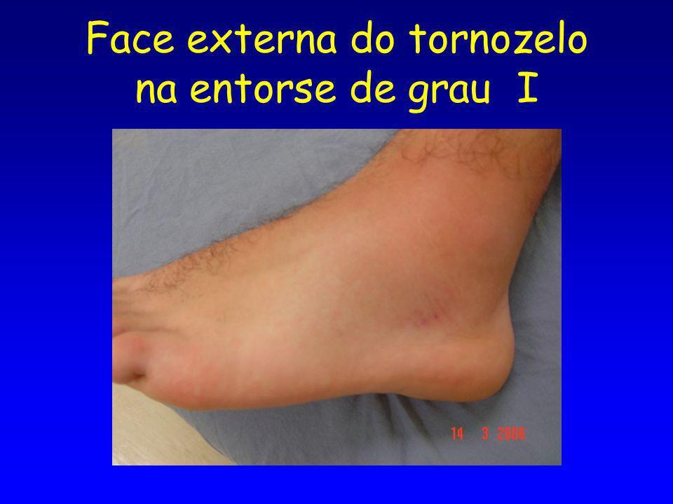 Face externa do tornozelo na entorse de grau I
