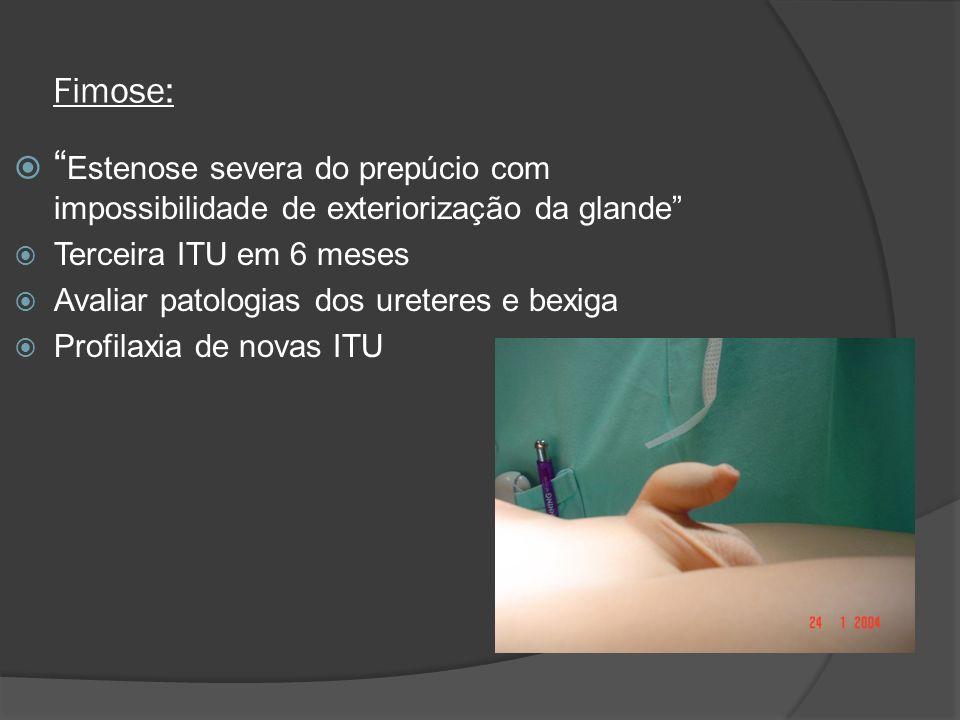 Fimose: Estenose severa do prepúcio com impossibilidade de exteriorização da glande Terceira ITU em 6 meses.