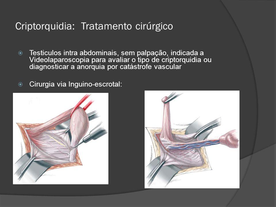 Criptorquidia: Tratamento cirúrgico