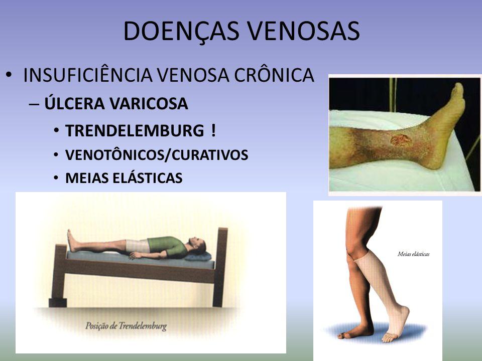 DOENÇAS VENOSAS INSUFICIÊNCIA VENOSA CRÔNICA ÚLCERA VARICOSA