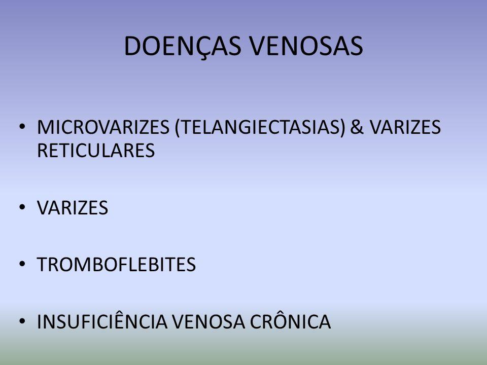 DOENÇAS VENOSAS MICROVARIZES (TELANGIECTASIAS) & VARIZES RETICULARES