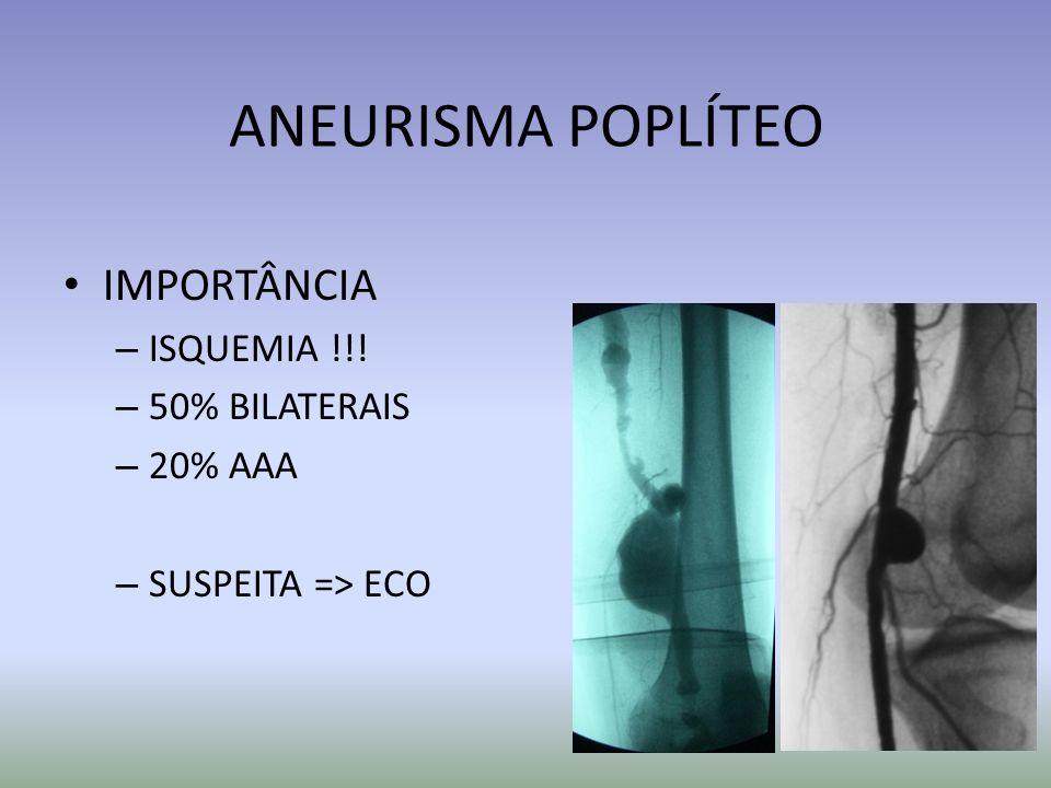 ANEURISMA POPLÍTEO IMPORTÂNCIA ISQUEMIA !!! 50% BILATERAIS 20% AAA