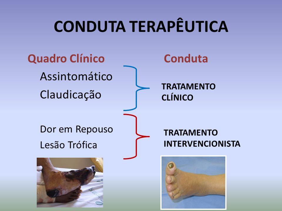 CONDUTA TERAPÊUTICA Quadro Clínico Conduta Assintomático Claudicação