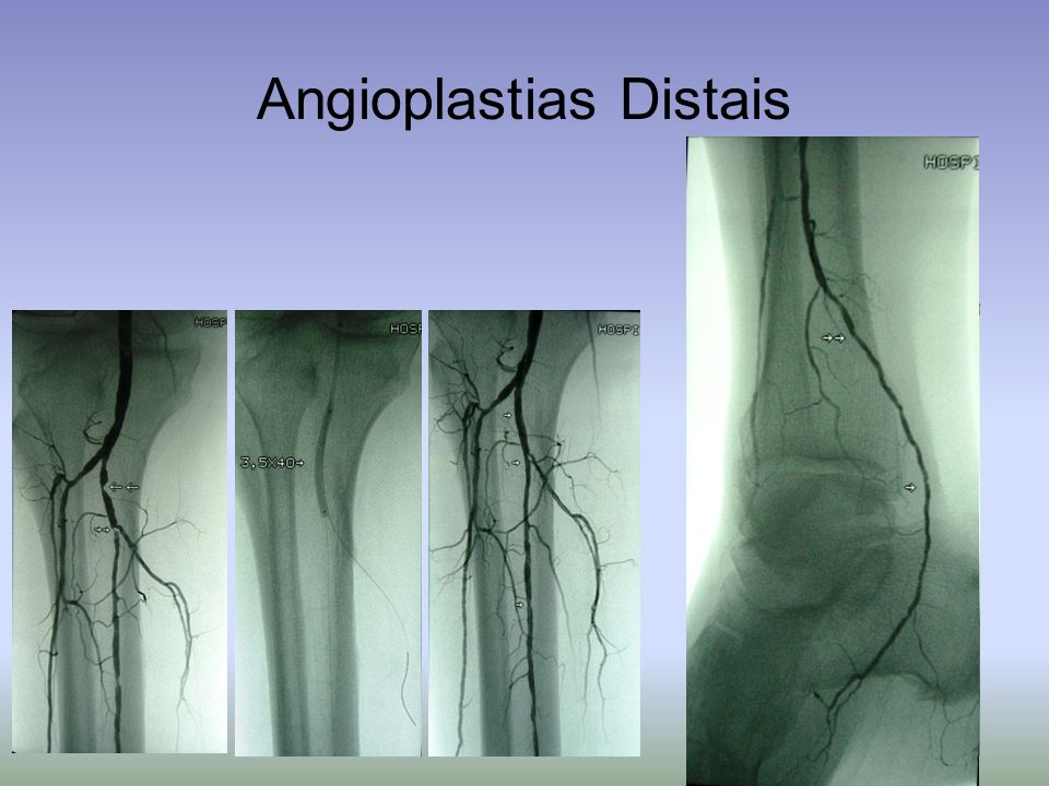 Angioplastias Distais