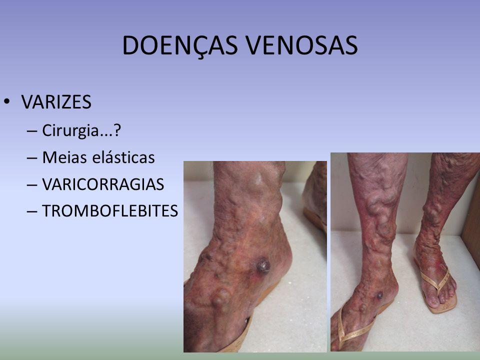 DOENÇAS VENOSAS VARIZES Cirurgia... Meias elásticas VARICORRAGIAS
