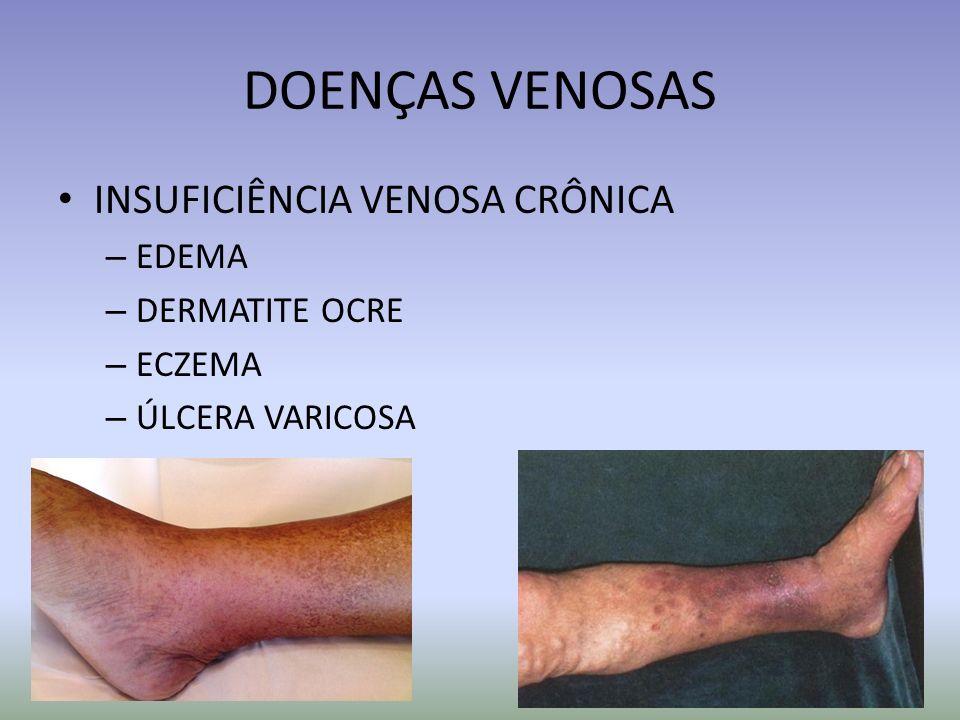 DOENÇAS VENOSAS INSUFICIÊNCIA VENOSA CRÔNICA EDEMA DERMATITE OCRE