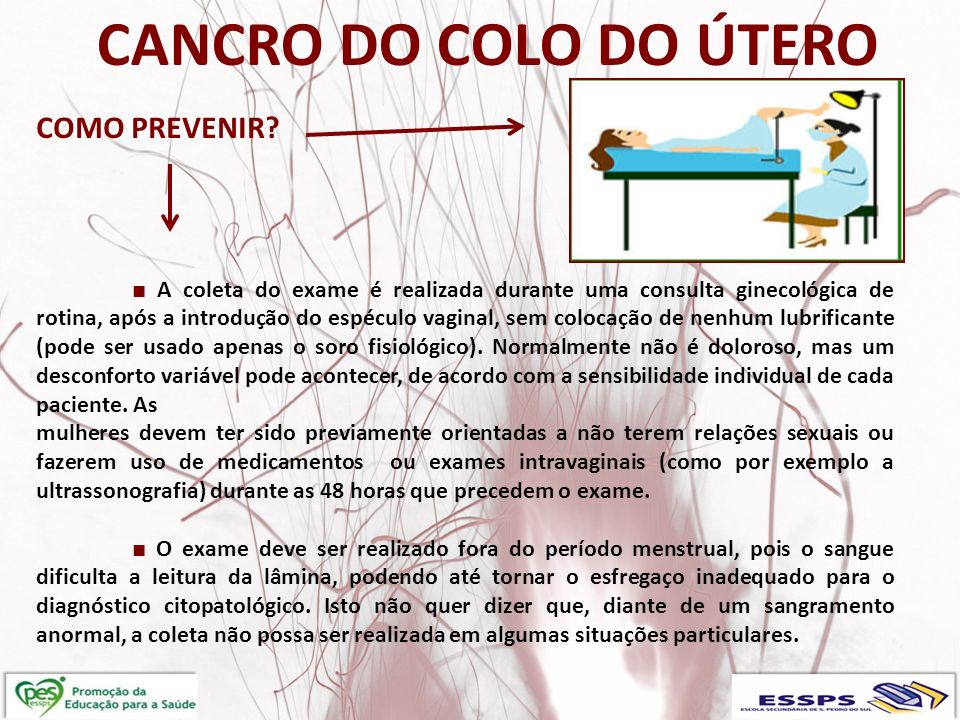CANCRO DO COLO DO u00daTERO ppt carregar