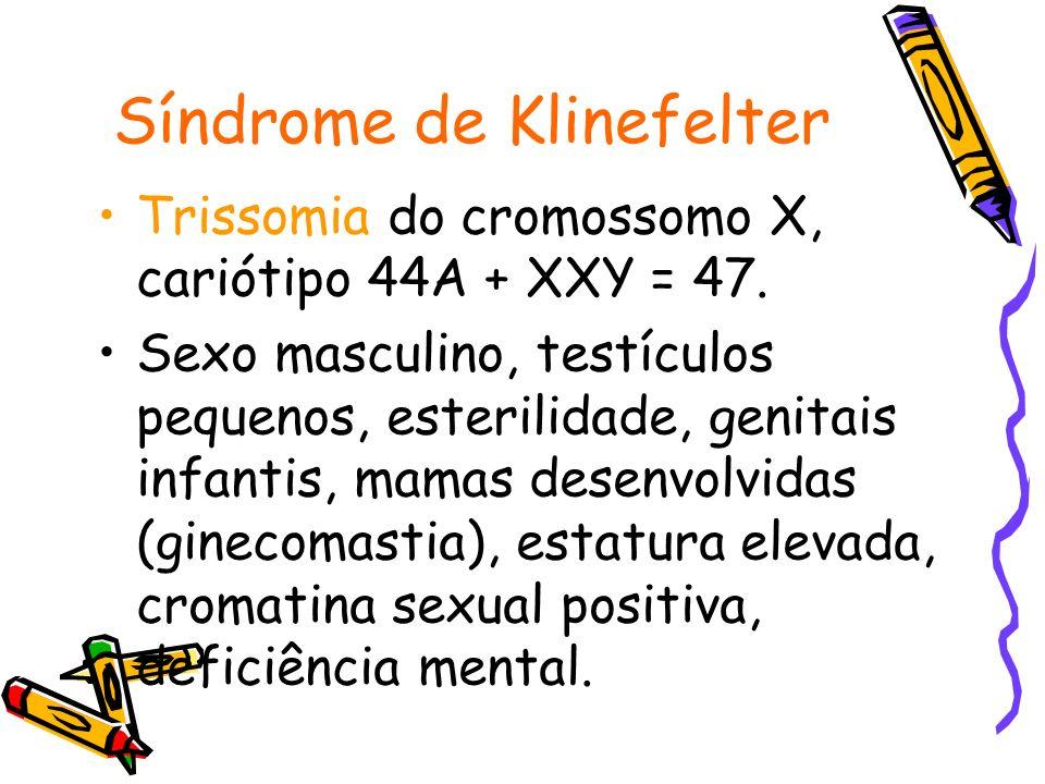 Síndrome de Klinefelter