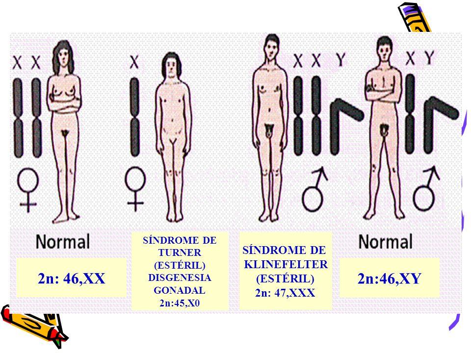 2n: 46,XX 2n:46,XY SÍNDROME DE KLINEFELTER (ESTÉRIL) 2n: 47,XXX