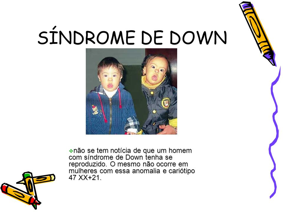 SÍNDROME DE DOWN