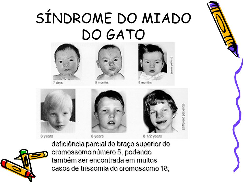 SÍNDROME DO MIADO DO GATO