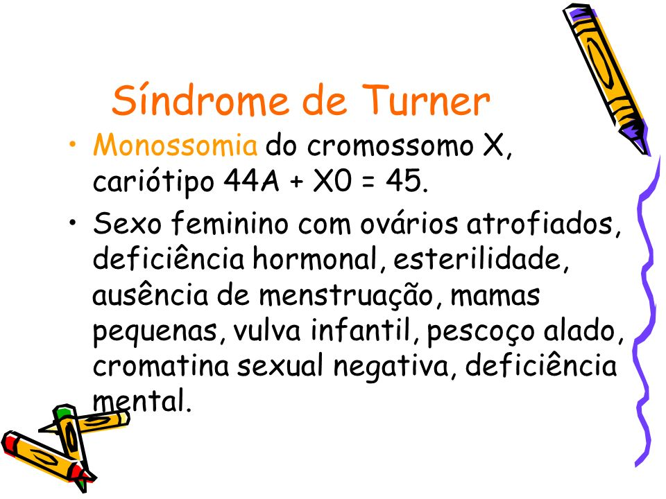 Síndrome de Turner Monossomia do cromossomo X, cariótipo 44A + X0 = 45.