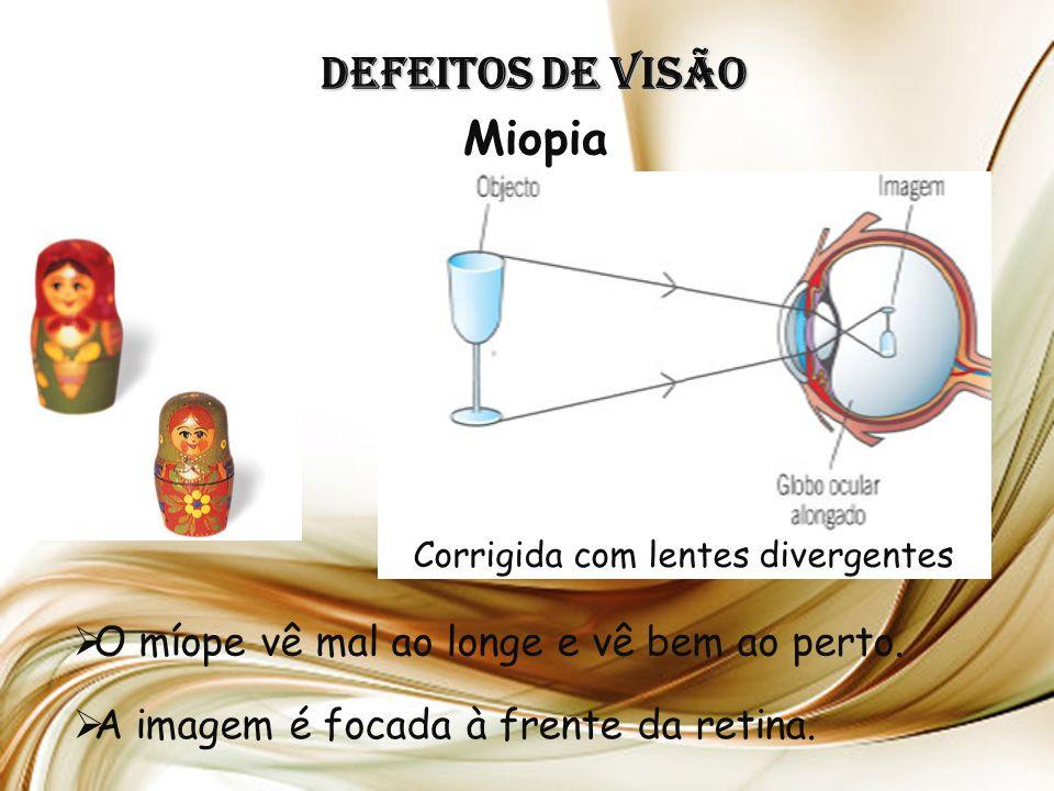 Defeitos de Visão Miopia O míope vê mal ao longe e vê bem ao perto.