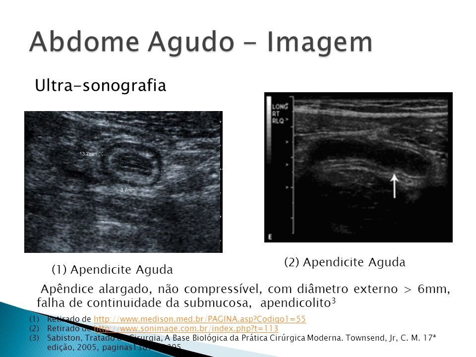 Abdome Agudo - Imagem Ultra-sonografia (2) Apendicite Aguda